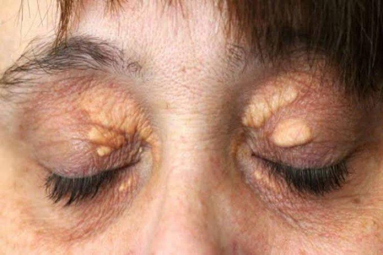 आंखों के आस-पास हो रहा सफेद निशान, तो हो जाएं सावधान...जानिए इसका कारण और निवारण